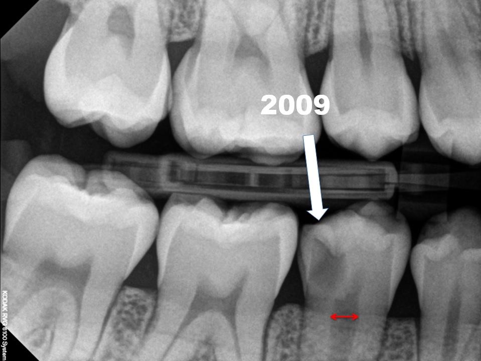 Röntgenfoto Maud1