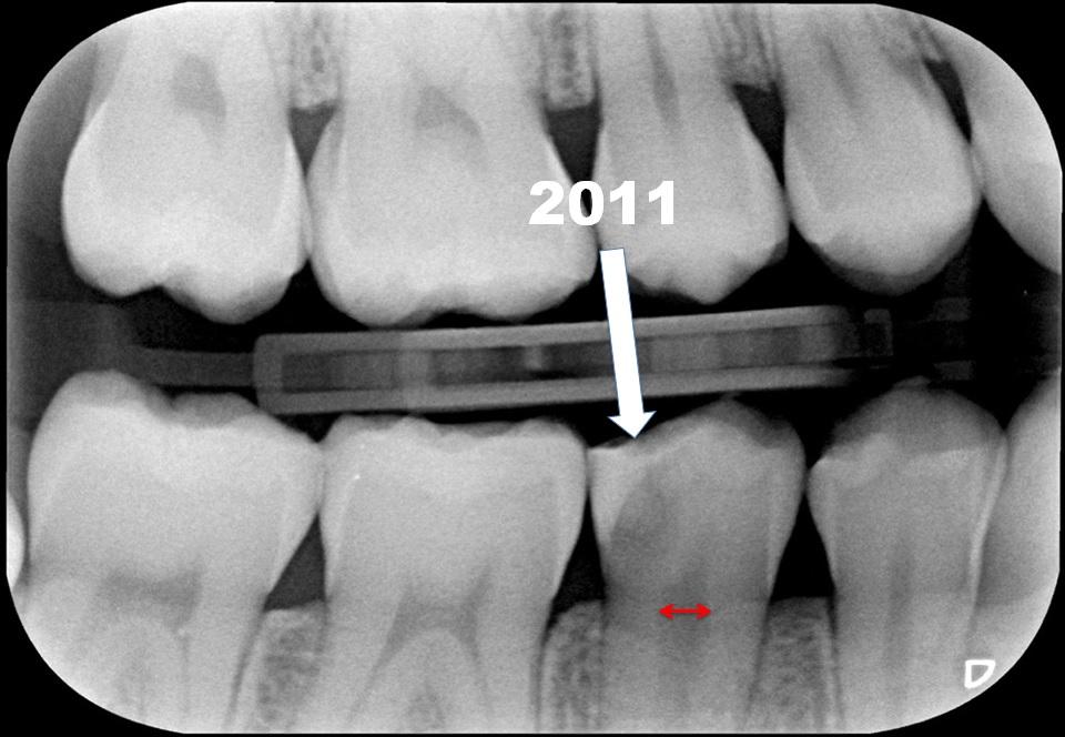 Röntgenfoto Maud2