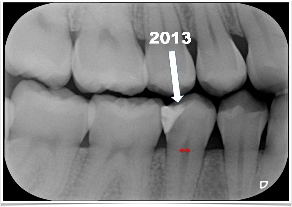Röntgenfoto Maud3