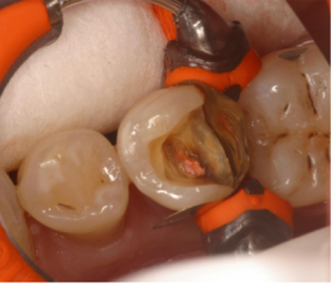 posterior GI filling using thermo 4